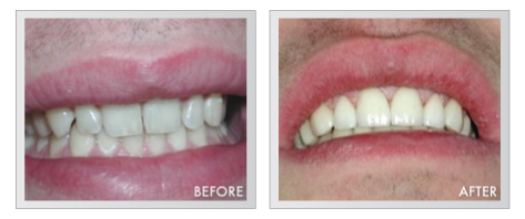 Michigan Dentists Before and After Pictures